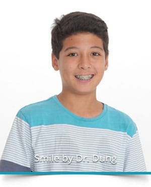 Adolescent Treatment at Dung Orthodontics in Honolulu and Aiea HI