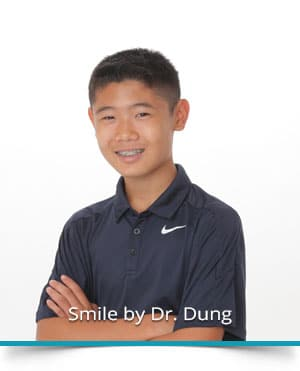All About Braces at Dung Orthodontics in Honolulu and Aiea HI